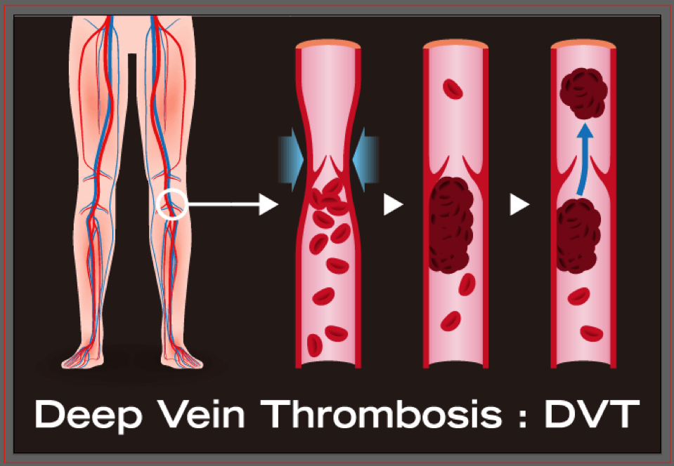 symptoms and treatments of deep vein thrombosis