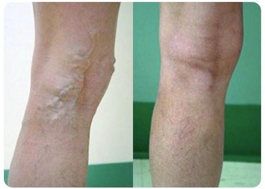 varicose vein treatment before and after #1