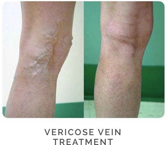 varicose vein before and after 1