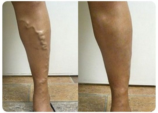 varicose vein treatment before and after