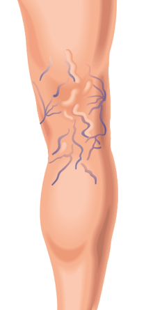 varicose veins on back of leg illustration