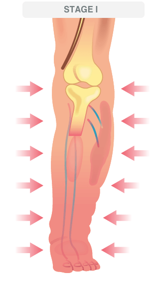 stage 1 advanced venous disease illustration