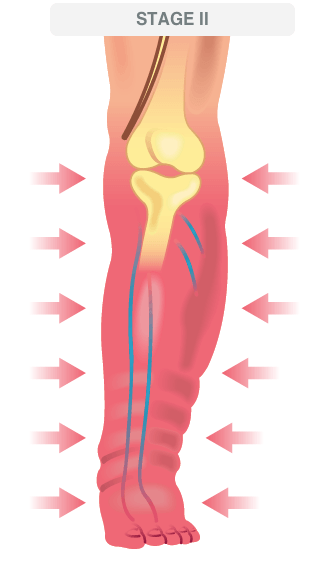 stage 2 advanced venous disease illustration