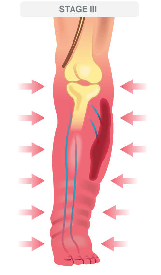 stage 3 advanced venous disease illustration
