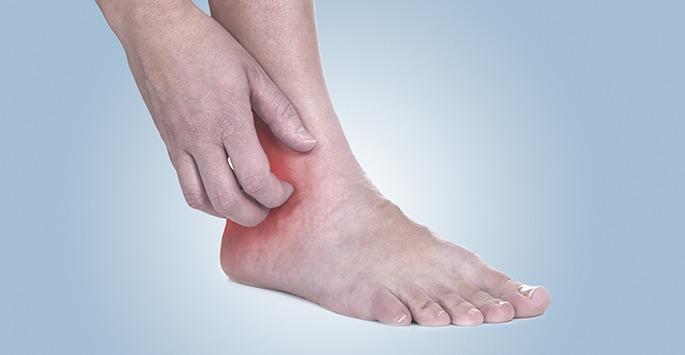 Leg Ulcers Miami