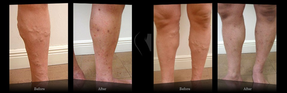 stasis dermatitis - Results Miami Vein Center - Video Reviews Miami Vein Center - B&A