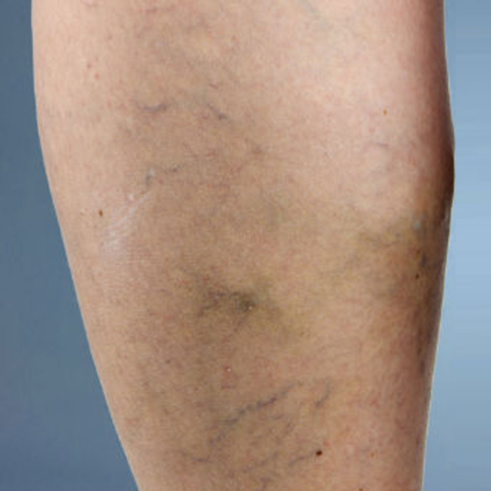 spider veins on leg