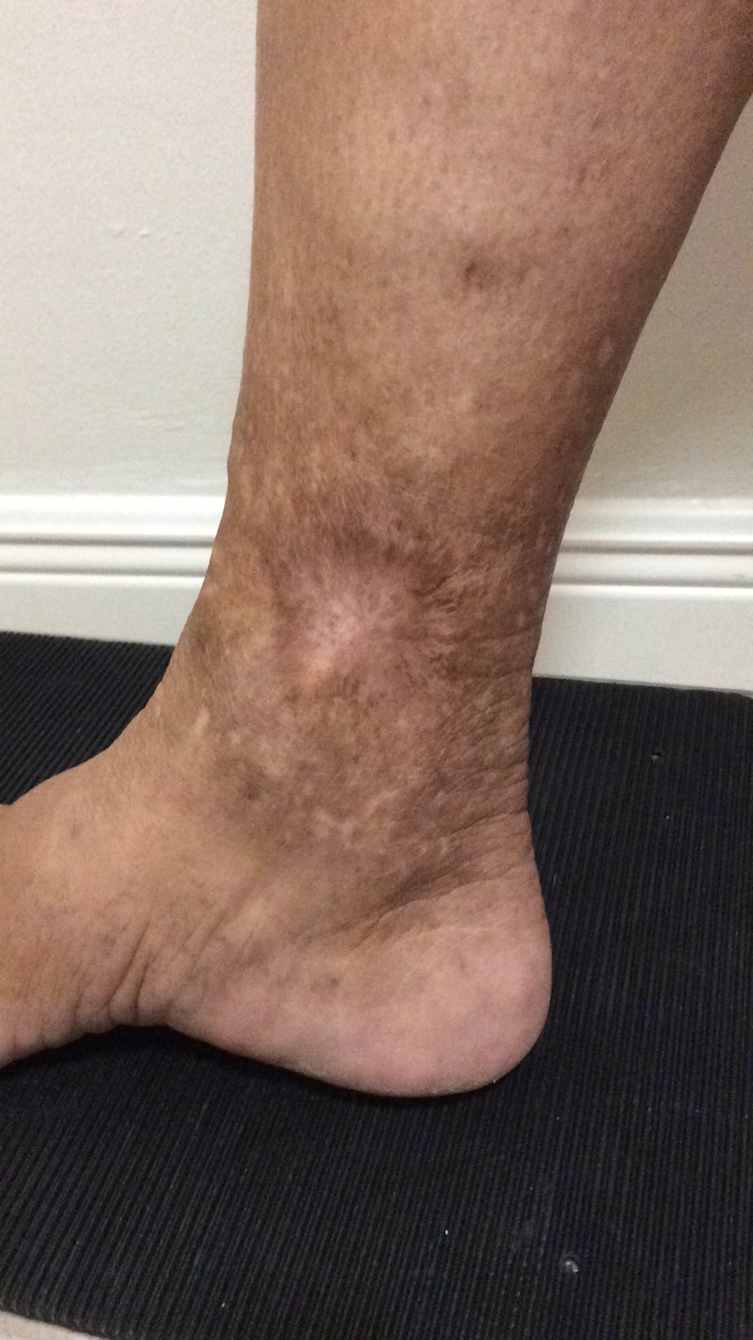 symptoms of Lipodermatosclerosis Miami
