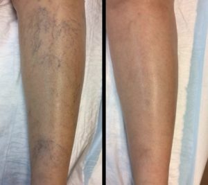 Testimonials Miami Vein Center - Before and After