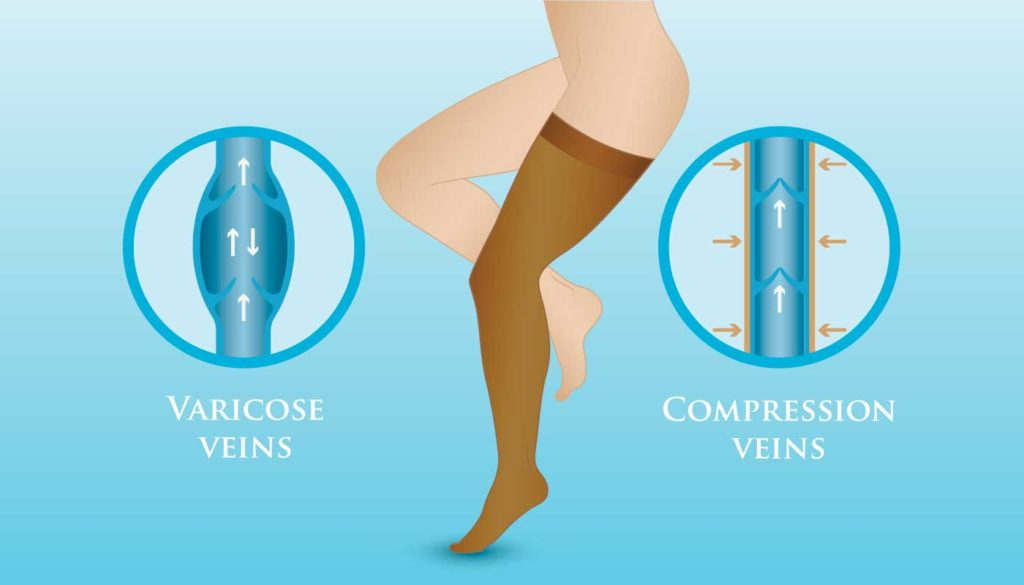 prevent and delay varicose veins with compression stockings