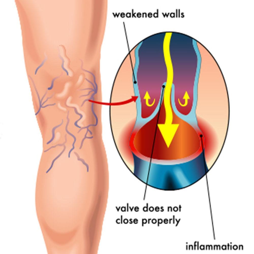 causes varicose veins
